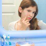 Realidades sobre el acné