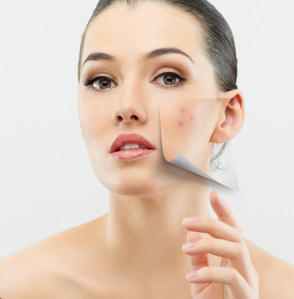 Elimina las manchas en la piel