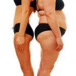Estadísticas de sobrepeso y obesidad