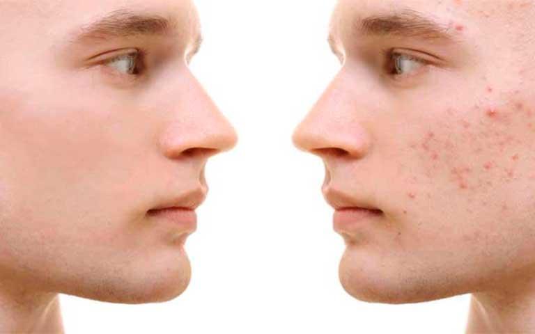 ¡Que tu rostro no quede marcado por el acné!